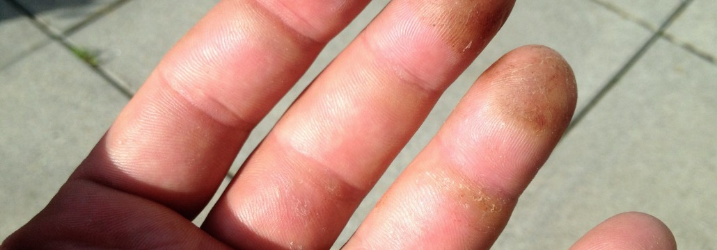 My hands after training today. They are not in bad shape right now, but still hardly ordinary.